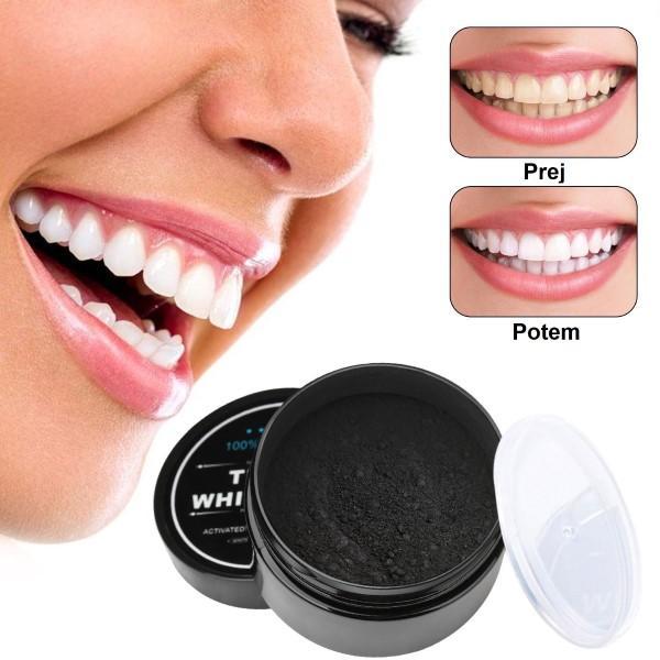 črna zobna pasta za beljenje zob